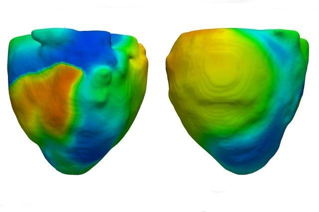 Two views of a heart model, created by researchers at the University of California Los Angeles, showing electrical activity during ventricular fibrillation, a condition in which the heart's ability to pump blood becomes fragmented and discoordinated. Photo by UCLA Cardiac Modeling Group