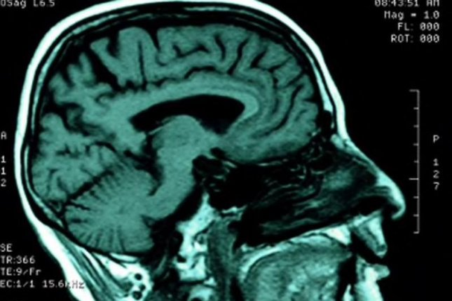 The findings may help explain why people with well-controlled HIV can have memory and concentration problems.Photo courtesy of HealthDay News