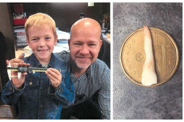 Luke Boulton, 9, shows off the 1.02-inch baby tooth that was declared the world's longest by Guinness World Records. Photo courtesy of Guinness World Records