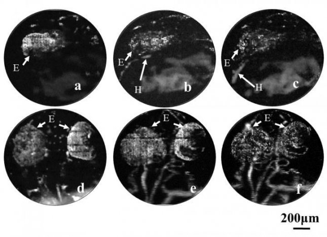 Using optical resolution photoacoustic microscopy, researchers at the University of Electronic Science and Technology of China zebrafish embryos without the use of fluorescent tags or contrast agents, observing vascular development of the heart and brain regions of the zebrafish embryo. Images a, b and c, seen at top, show the heart at 22, 25 and 28 hours after fertilization. In images d, e and f, the microvascular development in the brain is shown at 36, 48 and 72 hours after fertilization. In the images, H stands for heart and E stands for eye. Photo by University of Electronic Science and Technology of China
