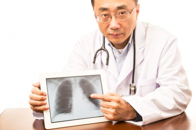 While screening for lung cancer in high risk patients can help catch disease earlier, many doctors don't do it because they either misunderstand the recommendations or underscore the potential benefits. Photo by Gang Liu/Shutterstock