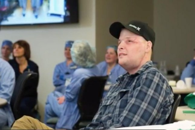 Facial transplant recipient Andy Sandness of Wyoming is pleased with the results of the surgery months after undergoing the rare procedure. He xpressed gratitude to the surgeon and the donor's family for allowing him to gt out in the world and do things he missed out on.  Screen capture/WCCO/AOL