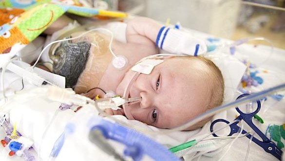 Conjoined Twins Owen And Emmett Ezell Separated Upicom
