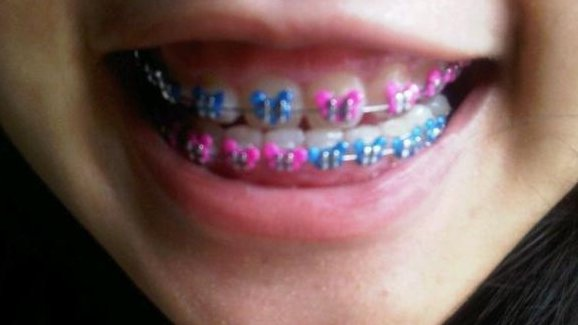 Why the fake braces trend may be dangerous for users upi solutioingenieria Gallery
