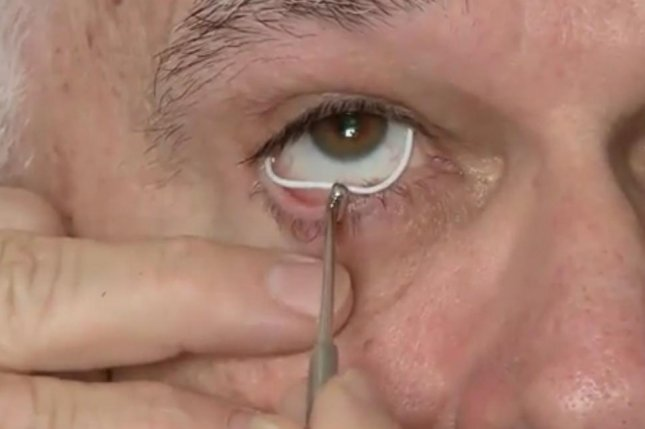 silicone ring may be superior to drops for glaucoma patients upi com