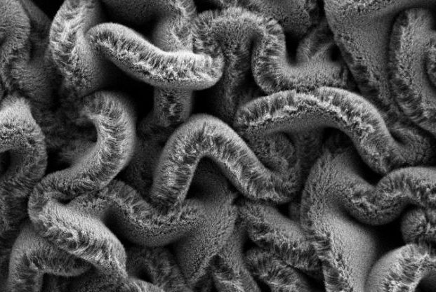 When carbon nanotube forests are placed on an elastomer substrate pre-stretched in two directions, it creates a maze of spaghetti instead of rows, improving the stretchable supercapacitor's performance. Photo courtesy of Duke University
