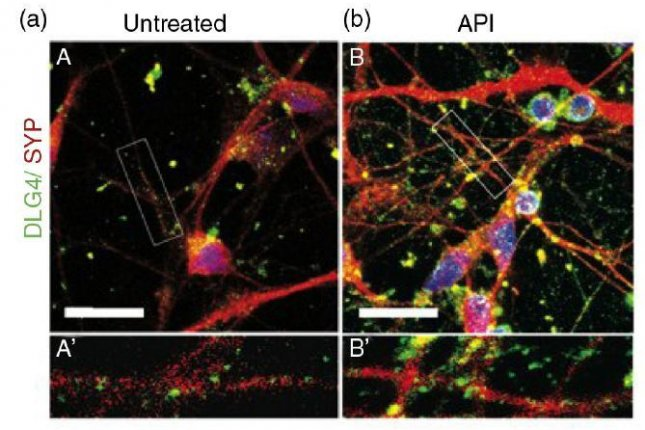 Neuron cells treated with apigenin, on the right, exhibit increased synapse formation, picture in red. Photo by Rehen et al/Advances in Regenerative Biology