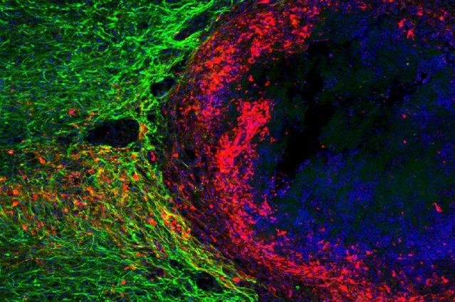 Previously injured nerve fibers, red, are shown regrowing through a dense astrocyte scar, in green, which scientists say was not expected before starting an experiment with mice. Photo by University of California Los Angeles