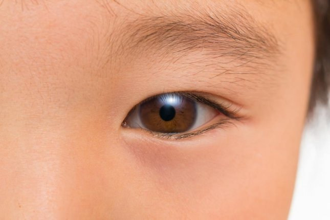 Testing to see where the eyes wander during a conversation can help doctor's better detect and diagnose autism in children, two separate studies suggest. Photo by norikko/Shutterstock