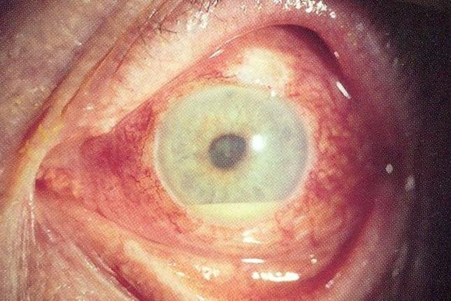 During a study, heumatoid arthritis medication adalimumab was found to reduce treatment failure in patients with uveitis. Photo by EyeMD (Rakesh Ahuja, M.D.)/Wikimedia Commons