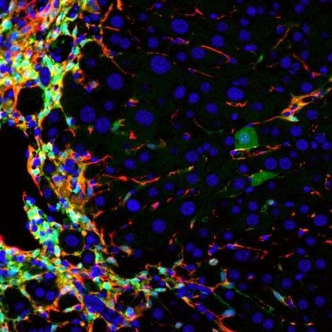 A new technique tested in mice can convert cells that drive liver disease, in red, into healthy new liver cells capable of regenerating the damaged liver, in dark green. Photo by University of California San Francisco