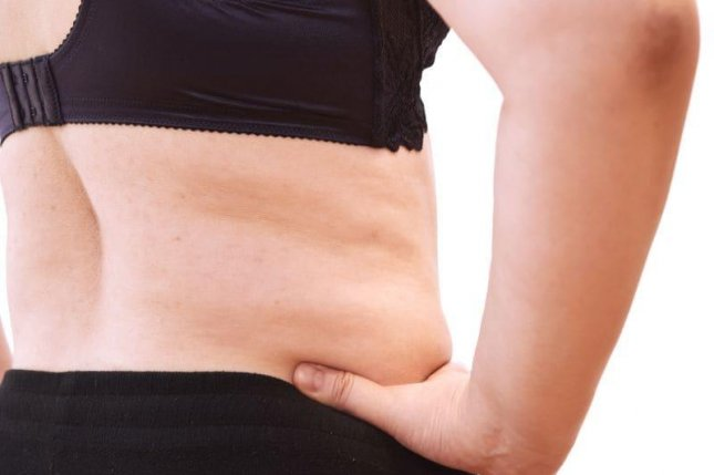 Body shape is linked to risk of heart disease, a new study says. Photo courtesy of HealthDay News