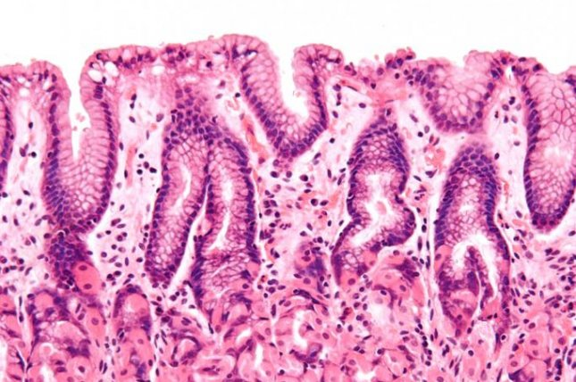 The intestinal wall, or epithelium barrier, ensures harmful pathogens can't escape from the guts into other parts of the body. Photo by Nephron/Wikimedia Commons
