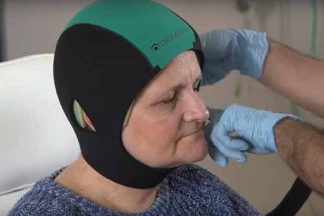 A computerized-system pumps cooled liquid through the cap during chemotherapy treatment, causing blood vessels to constrict and slowing cell division in hair follicles, preventing hair loss. Photo by Dignitana/YouTube