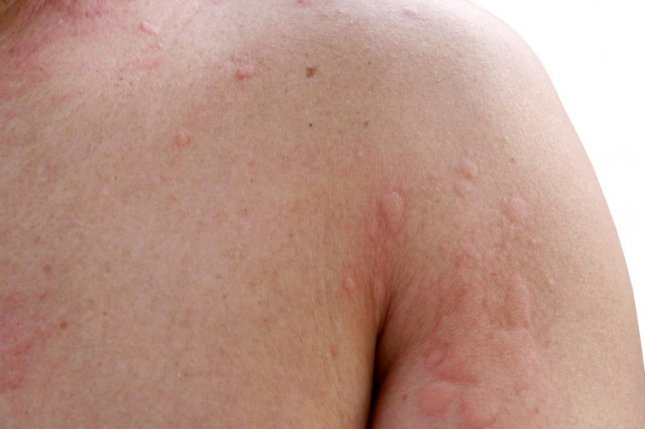 Researchers say some patients my be mistaking a chronic hives outbreak for an allergic reaction to penicillin. Photo by FreeBirdPhotos/Shutterstock
