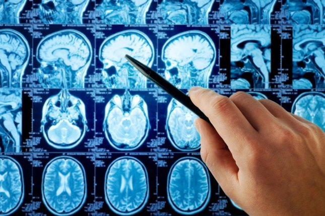 Researchers say inducing protective action among neurons in the brain may prevent further damage to the organ after a stroke or other traumatic injury. Photo by Triff/Shutterstock