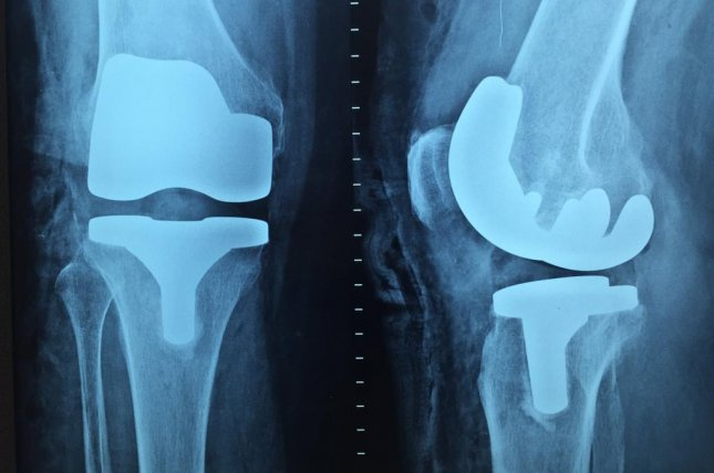 Use of prescription opioids following knee and hip replacement has increased, a new study has found. Photo by Andersonvr/Pixabay