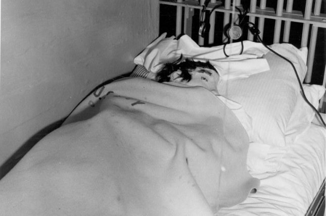 One of the decoy heads is seen in the cell bed of Clarence Anglin after the June 11, 1962, escape. Photo courtesy of the FBI