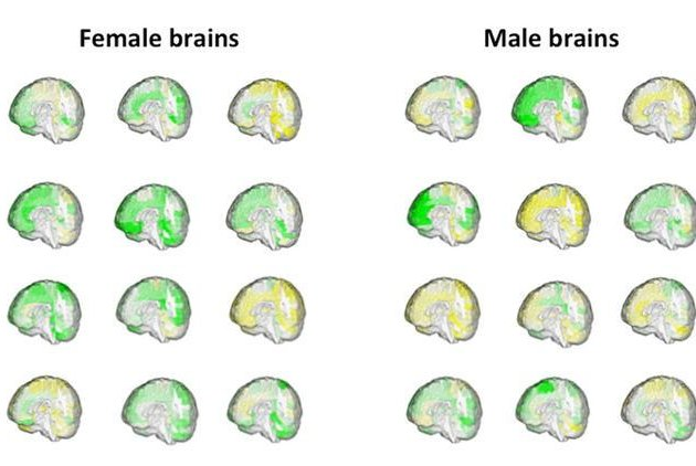 Brain scans show that very few brains feature all male-associated regions or all female-associated regions, more than 90 percent feature a mix. Photo by Zohar Berman/Daphna Joel