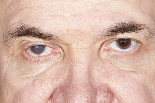 Researchers identified a chemical that dissolves cataracts, a clouding of the eye's lens as proteins clump on its surface, and is soluble enough to be used in eye drops -- the holy grail of ophthalmology. Photo by SERGEI PRIMAKOV/Shutterstock