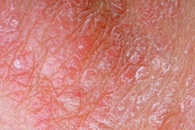 Many patients with psoriasis seek alternatives when traditional treatments don't work, a new survey found. Photo courtesy of HealthDay News