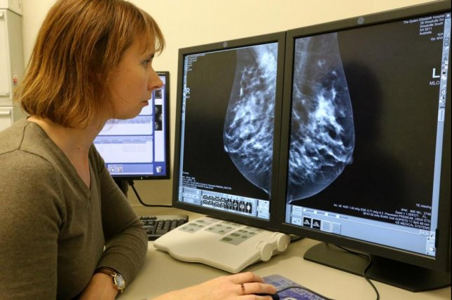 Researchers from the University of Adelaide in Australia have found that chronic low-level inflammation drives breast density and can increase a woman's chance of getting breast cancer. Photo by the University of Adelaide.