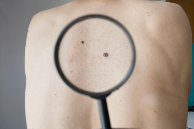 People with more moles are aware of their greater risk for melanoma diagnosis, but people with 20 or fewer moles tend to be diagnosed with cancer more often, according to a new study. Photo by cunaplus/Shutterstock