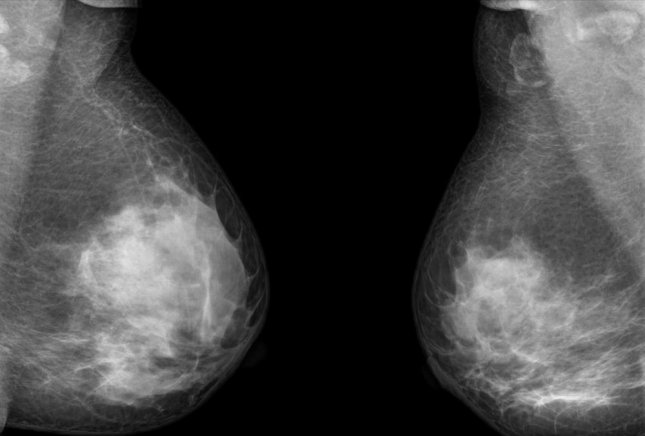Researchers have shown in recent papers an increasing concern about false positive diagnoses and clinically unproven test models for breast cancer. Photo: thailoei92/Shutterstock
