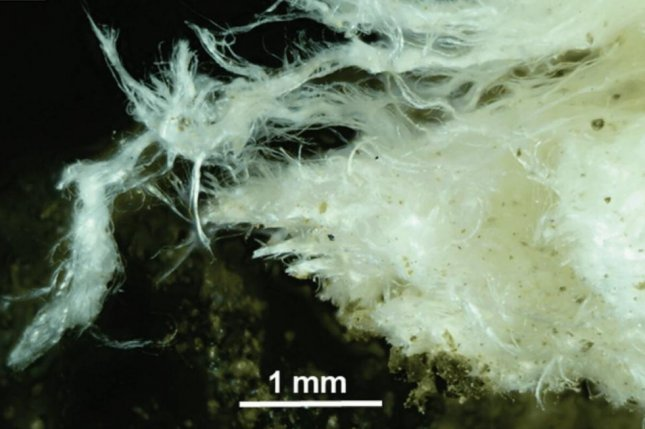 The mineral called erionite forms fibers that can cause an asbestos-like disease when inhaled. Photo by New Zealand Journal of Medecine