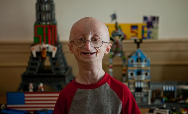 Sam Berns, the Massachusetts teen whose battle with the premature aging disease progeria was the subject of the HBO documentary, 'Life According to Sam,' died January 11, 2014. (HBO)