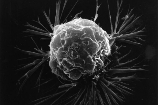 Levels of a specific enzyme determine a breast cancer tumor's behavior, scientists found. Photo by the U.S. National Institutes of Health