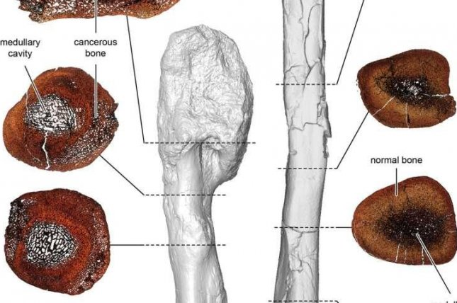 Using CT scans, researchers discovered a malignant bone cancer in the fibula of a horned dinosaur that lived 75 million years ago. Photo by Royal Ontario Museum/McMaster University