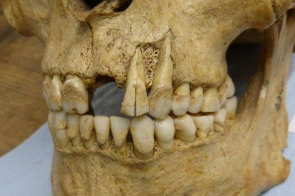 Tartar from medieval tooth samples can help scientists understand what early Britons were eating, British scientists say. Photo by Camilla Speller/University of York