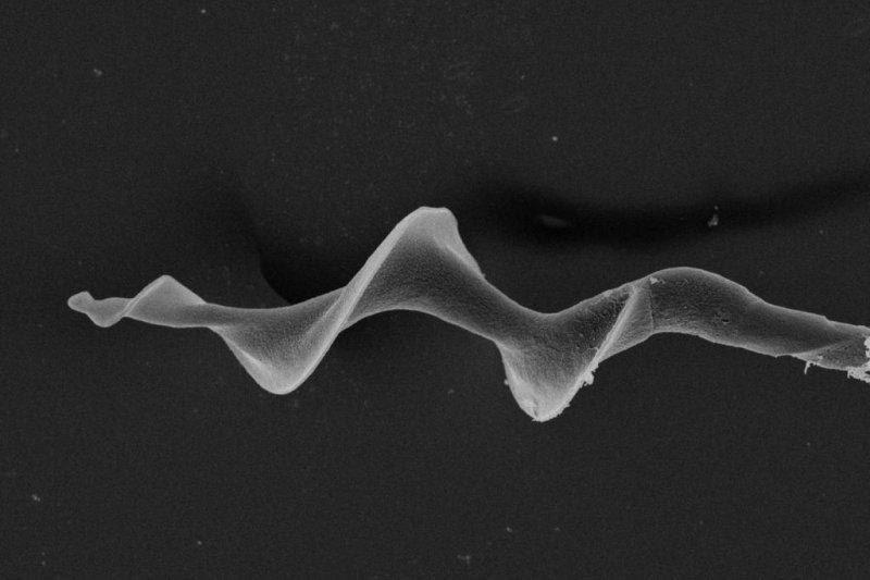 Researchers found screw-shaped sperm can swim faster than straight sperm. Photo by Hanna Støstad