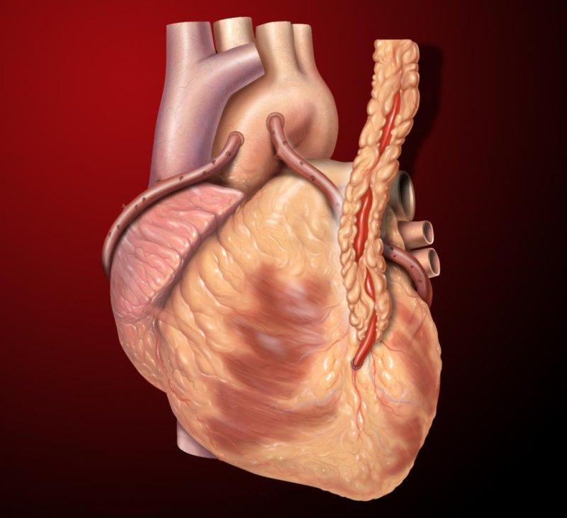 how coronary artery disease can be treated by angioplasty
