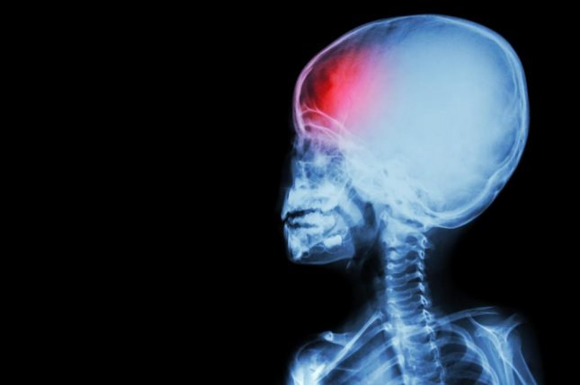 After a traumatic brain injury, children often require months or years of rehabilitative therapy, however less than half of providers researchers surveyed in Washington state offered language services or accepted Medicaid, according to a study of low-income, Spanish-speaking children. Photo by Puwadol Jaturawutthichai/Shutterstock