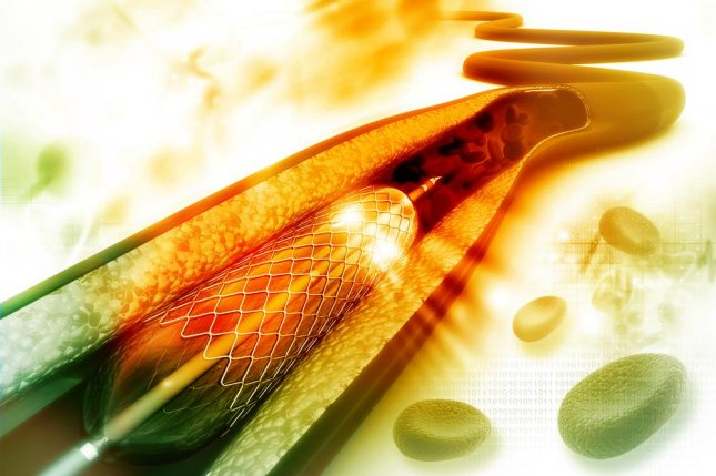 Most stents placed in arteries are permanent metallic implants that deliver drugs to heal arteries and hold them open. The dissolving stent accomplishes the same goal, however after it heals the artery it dissipates, leaving two tiny metallic markers so that doctors know where it had been placed. Photo by hywards/Shutterstock