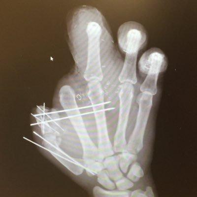 An X-Ray of Jason Pierre-Paul's hand, which was mangled in a fireworks mishap. Photo courtesy @iamjasonpierrepaul