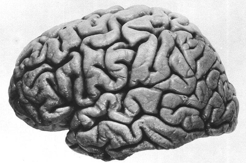 Brain Development Influenced By Immune >> Scientists Find Strongest Genetic Influence On Schizophrenia Upi Com