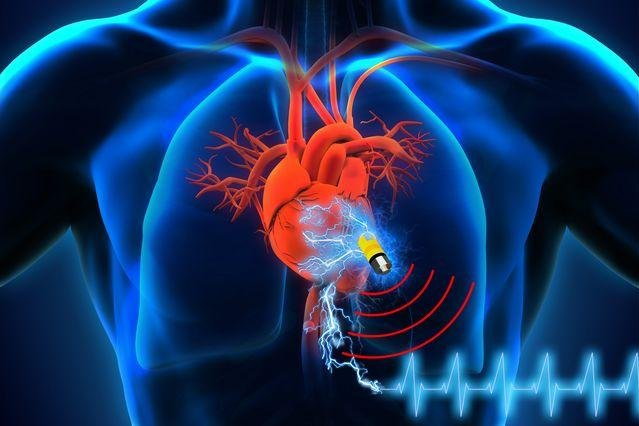 Researchers have invested a device that uses ions in bodily fluids to store energy. The energy can be used to power medical devices like a pacemaker. Photo by Islam Mosa/University of Connecticut and Maher El-Kady/UCLA