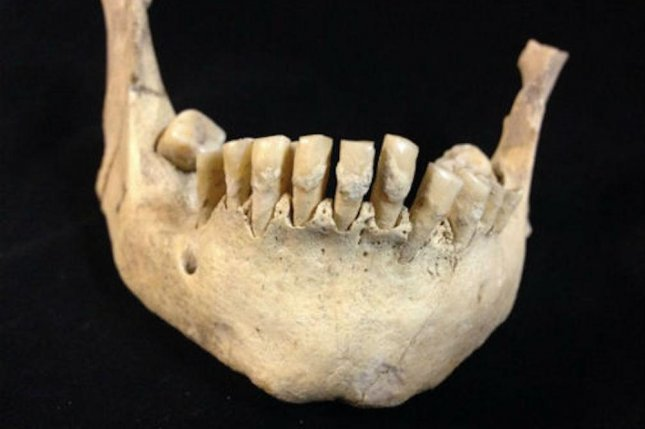 Scientists found milk proteins in dental plaque collected from 6,000-year-old teeth. The fossil teeth, hailing from three different Neolithic dig sites and housed at the Dorset County Museum, belonged to Britain's earliest farmers. Photo by the University of York