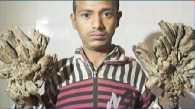 Watch: 'Tree man' to undergo surgery in Bangladesh - UPI com