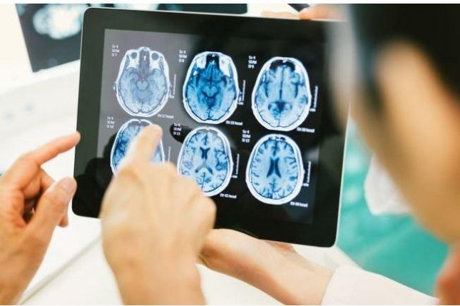 Medical personnel look at brain scans of patients with traumatic brain injuries. Photo courtesy of Walter Reed National Military Medical Center