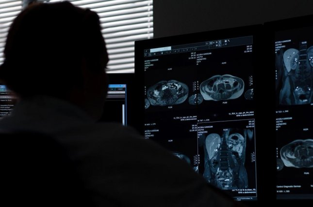 New software created by researchers at the University of Central Florida can analyze PET and CT scans faster and much better than doctors using their naked eyes. Photo by Hadrian/Shutterstock