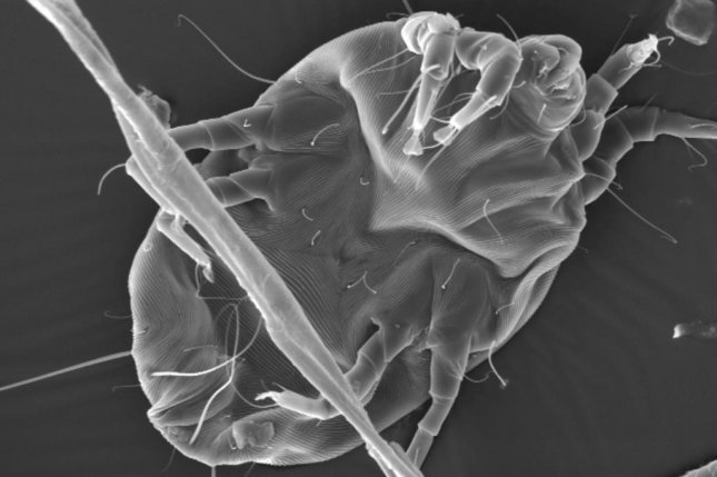 New research is helping scientists understand why some proteins in dust mites elicit an allergic reaction while others don't. Photo by Holly Leddy/Duke University