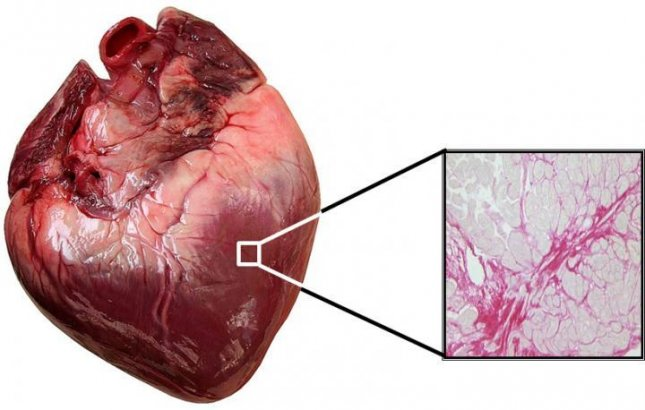New research could lead to personalized treatment for heart failure