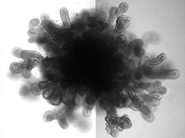 Researchers have created tiny 3D lung organoids that mimic the function of full-sized human lung to study respiratory diseases. Photo courtesy of Snoeck lab/Columbia University Medical Center
