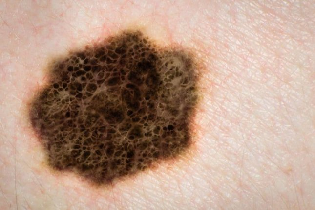 About 55 percent of those diagnosedwith head and neck melanoma between 1995 and 2014 were boys and men, researchers found.Photo courtesy of HealthDay News