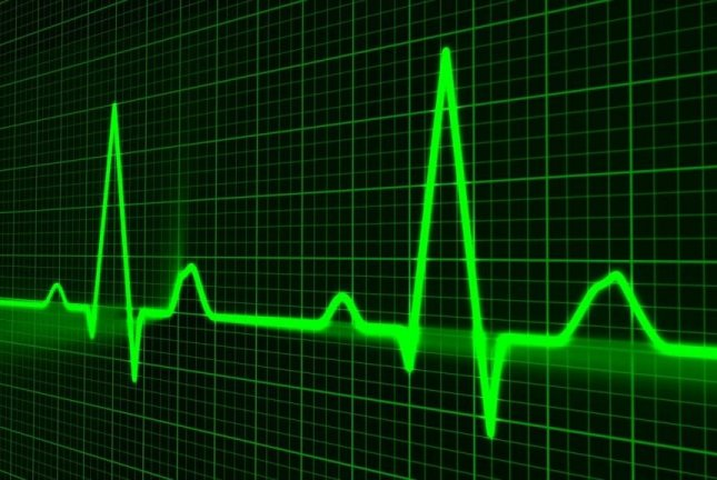 A simple procedure -- performed during unrelated heart surgery, or by other less invasive methods -- could reduce stroke risk for people with Afib, new research shows. Photo by PublicDomainPictures/Pixabay