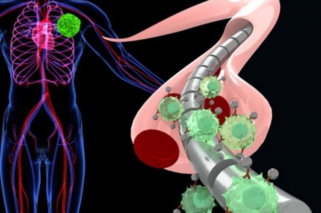If approved for use in humans, the magnetic wire (gray) would be inserted into a vein in the arm (light pink) and attract floating cancer cells labeled with magnetic nanoparticles (light green and gray) from the tumor (neon green). Image courtesy of Sam Gambhir/Stanford